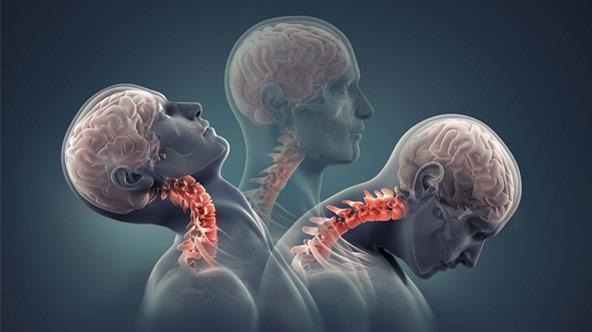 3 Secret Effects of Whiplash Type Injuries